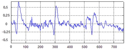 Signal time-domain waveform graphs