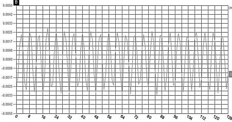 Contrast of amplitudes of the vibration system