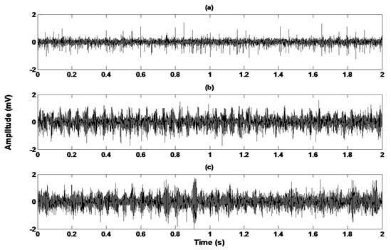 Acoustic signals of each gearbox condition: a) healthy, b) wear in gear, c) broken gear