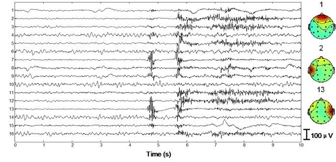 Performance of the algorithm on interictal EEG
