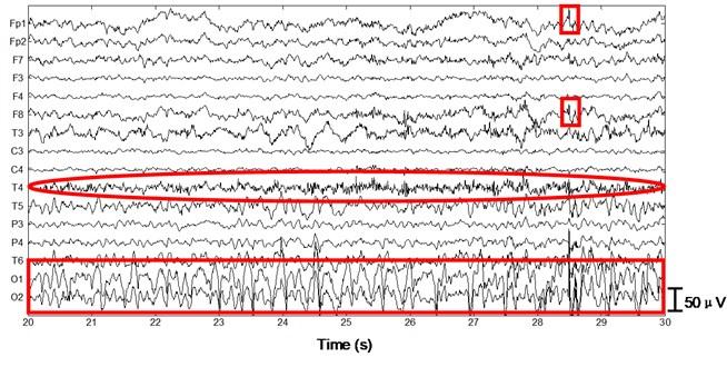 Performance of the algorithm on ictal EEG
