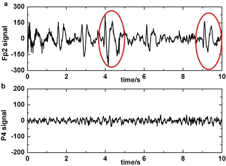 a) The original EEG signal which contains blinking artifacts in Fp2 (blinking which pollute P4 channel's signals is circled), b)the original data which do not contain slow-waves in P4, c)third order of wavelet coefficients of the signal which is preprocessed by blinking cancelling method in P4, d)third order of wavelet coefficients of the original signal which do not have to be preprocessed in P4