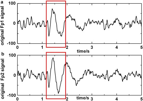 a) Original EEG signal which contains blinking in Fp1, b)original EEG signal which contains blinking in Fp2, c)original EEG signal polluted by blinking in F3, d)the EEG signal processed by artifact cancelling method in F3. Blinkings in Fp1 and Fp2 are boxed in boxes