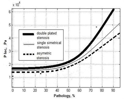 Distribution of local pressure in the blood vessel with different stenosis