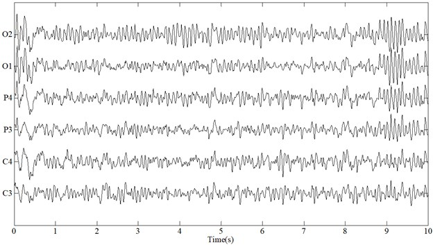 Acquired EEG signals while performing simulated driving tasks in (a) awake and (b) fatigue state