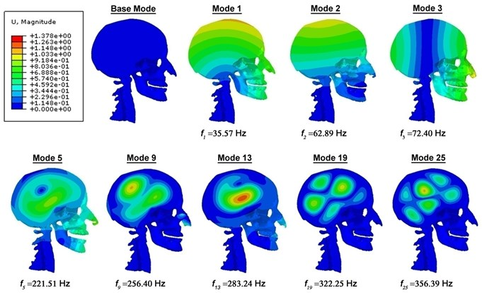 Mid-sagittal view of the displacement magnitude (in mm) contour plots of the head-neck model, showing various mode shapes and their corresponding frequencies for the undamped vibration case