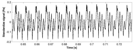 a) Acoustic speech signal, b) vibrations of vocal folds