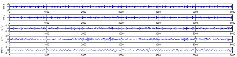Gear signal EEMD results and their corresponding spectrums