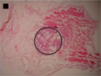 Micrographs of histological samples containing radiofrequency induced necrosis zones on the canine thigh muscle. Contours lined in black are drawn artificially. Size of scale marker is 1 mm×1 mm