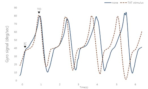 Gyro signal during normal gait