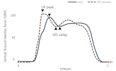Vertical GRF during normal gait