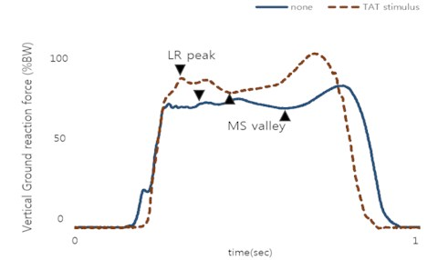 Vertical GRF during vestibular sense disorder gait