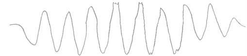 The test curves of muzzle vibration displacement before and after the reinforcement of the cradle stiffness