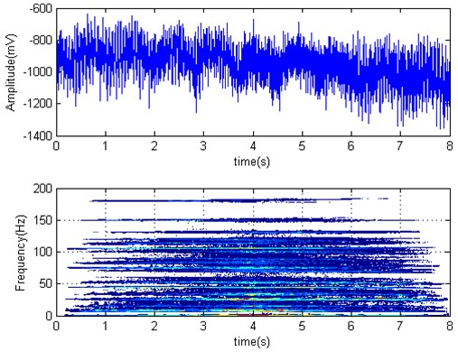 F3 torque time series and Wigner-Ville distribution (strip left from F2 at 4.78 s)