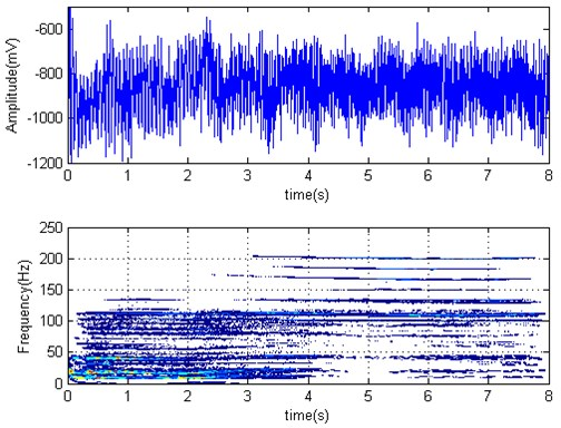 F3 roll torque time series and Wigner-Ville distribution (F4 started biting strip at 1.64 s)