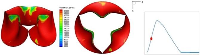 Valve leaflet deformation during systole
