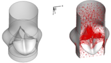 3D complex flow of normal aortic valve