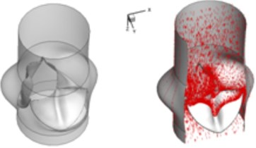 3D complex flow of bicuspid aortic valve