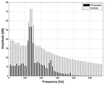 Averaged spectrum of the vowel