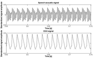 a) Normal signal, b) larynx cancer signal, c) vocal cord nodule signal, d) vocal cord polyp signal