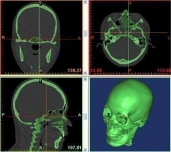 Human body computed tomography (CT) scan images