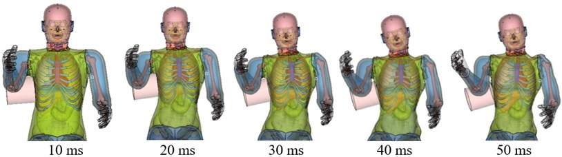 Simulation of chest side impact biomechanical responses, fracture state,  and impact force-deformation curve