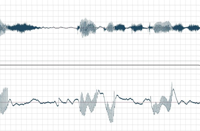 Temporary acoustic signal waveforms (upper) and EGG (bottom graph)