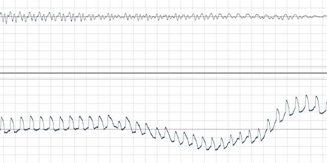 Temporary acoustic signal waveforms (upper) and EGG (bottom graph), stuttering – embolofrazja