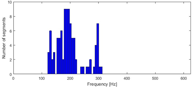 Histogram of 2nd feature values
