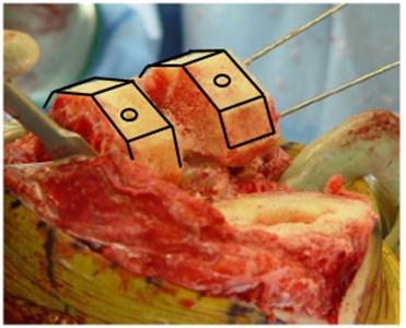 Bone preparation [9]