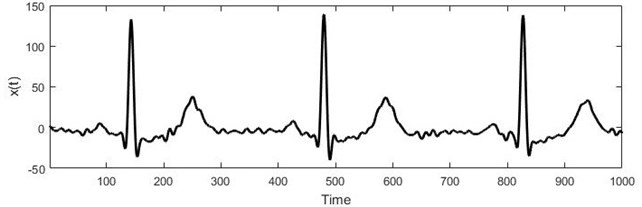 a) Short electrocardiogram signal, b) full electrocardiogram data