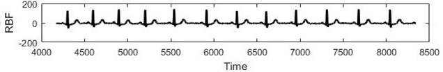 a) Real ECG data, b) RBF forecast, c) Residuals