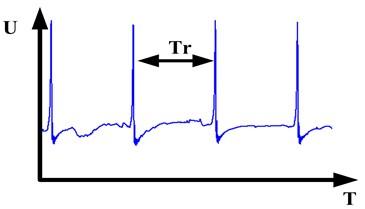 Schematic diagram of the abnormal  signal when rubbing fault occurred