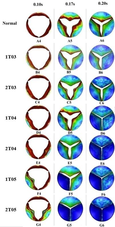 Valve orifice distortion comparison among normal valve and disease valves