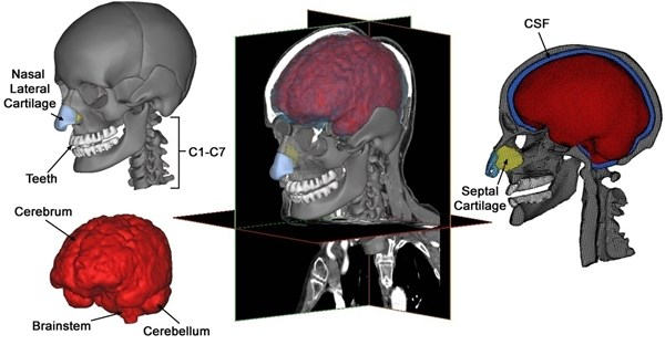 Various components of a subject-specific model of the human  head-neck segmented from CT and MRI data