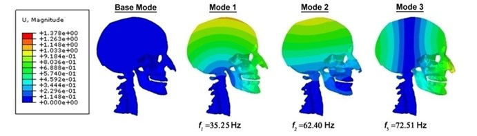 Contour plots of the displacement for the human head-neck complex, indicating their  corresponding frequencies and diverse mode shapes under the undamped vibration circumstances