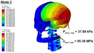 Contour plots of biomechanical responses of human finite element head-neck model,  indicating their vertex values at special important modes