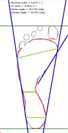 Foot parameters