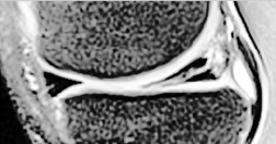 Damaged meniscus images from left to right: a) input image,  b) image after histogram equalization, c) image with extracted meniscus fragments