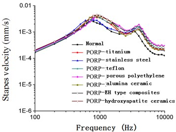 Frequency-response curve of stapes  velocity after replacing PORP (50 dB)