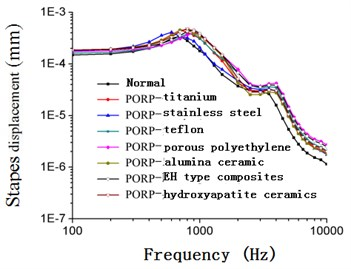 Frequency-response curve of stapes displacement after replacing PORP (105 dB)