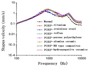 Frequency-response curve of stapes  velocity after replacing PORP (105 dB)