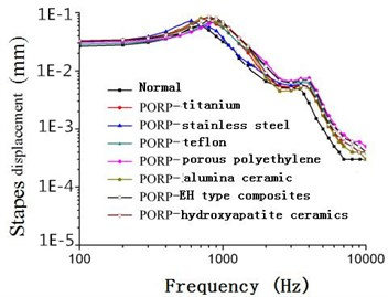 Frequency-response curve of stapes displacement after replacing PORP (120 dB)