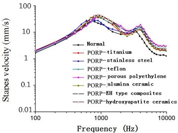 Frequency-response curve of stapes  velocity after replacing PORP (120 dB)