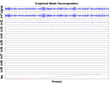 Decomposition result  of rolling element signal