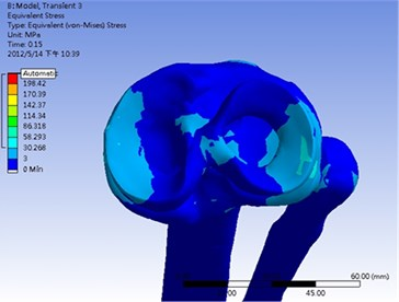 Maximum stress occurred at both medial and lateral meniscus when applying 1.800 N impact force on distal tibia