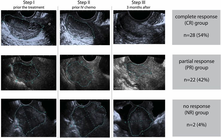 Subgroups according to ultrasound findings after the treatment