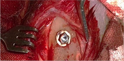 a) The installed dental implant, b) scoring the dental implant