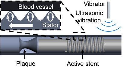 Drive mechanism of active stent
