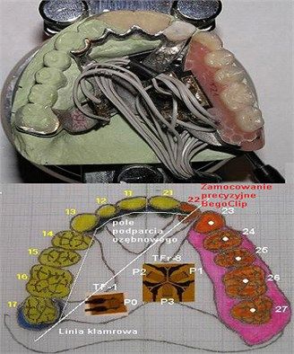 Graphical representation of the model of denture